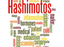Hashimotos, word cloud concept on white background.